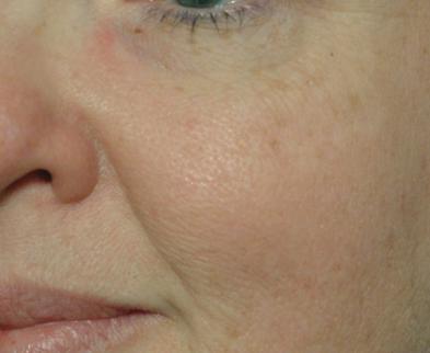 tratare rozacee brasov - laser vbeam - skin laser clinic