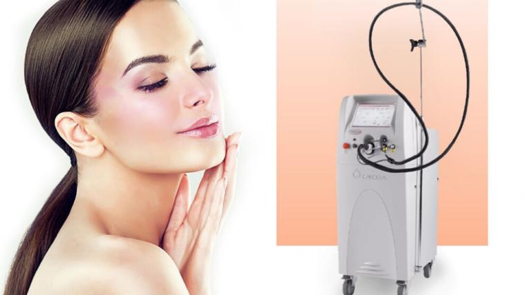 Tratament laser Rozacee/ Cuperoza