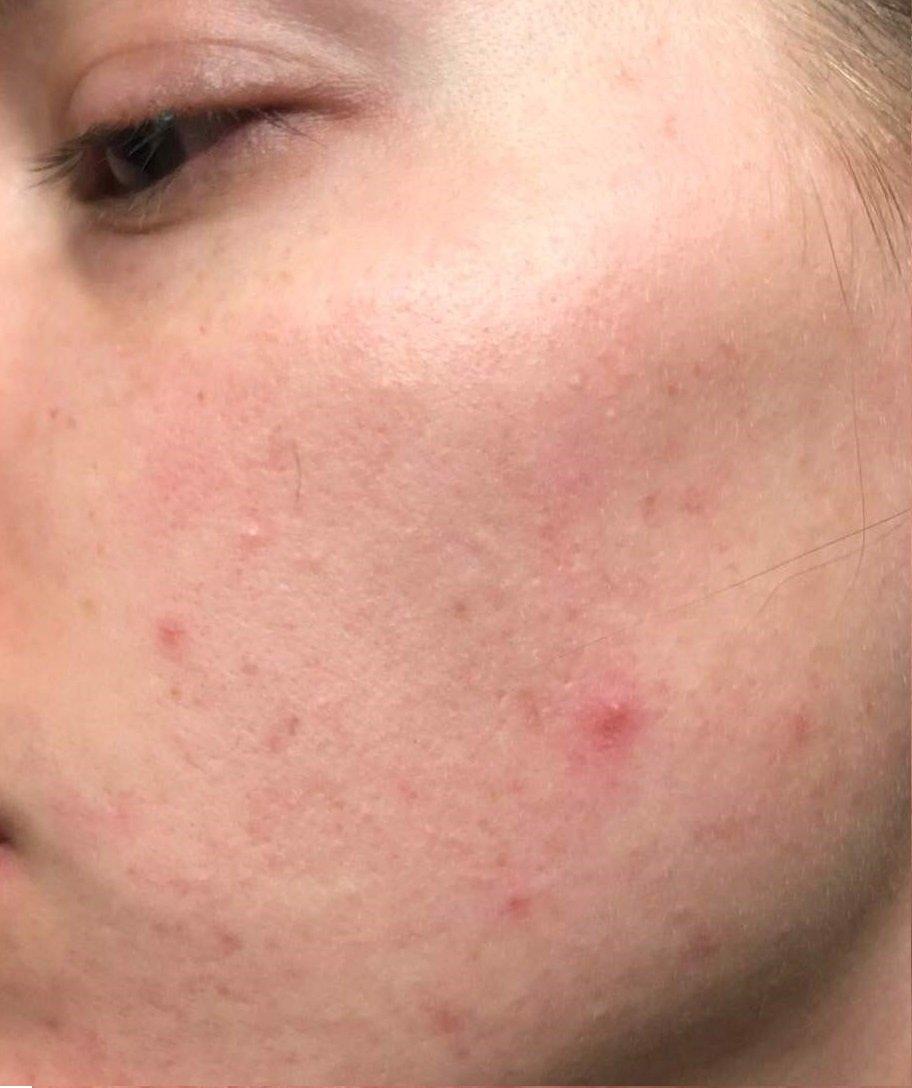 tratament laser acnee brasov - dermatolog - skin laser clinic