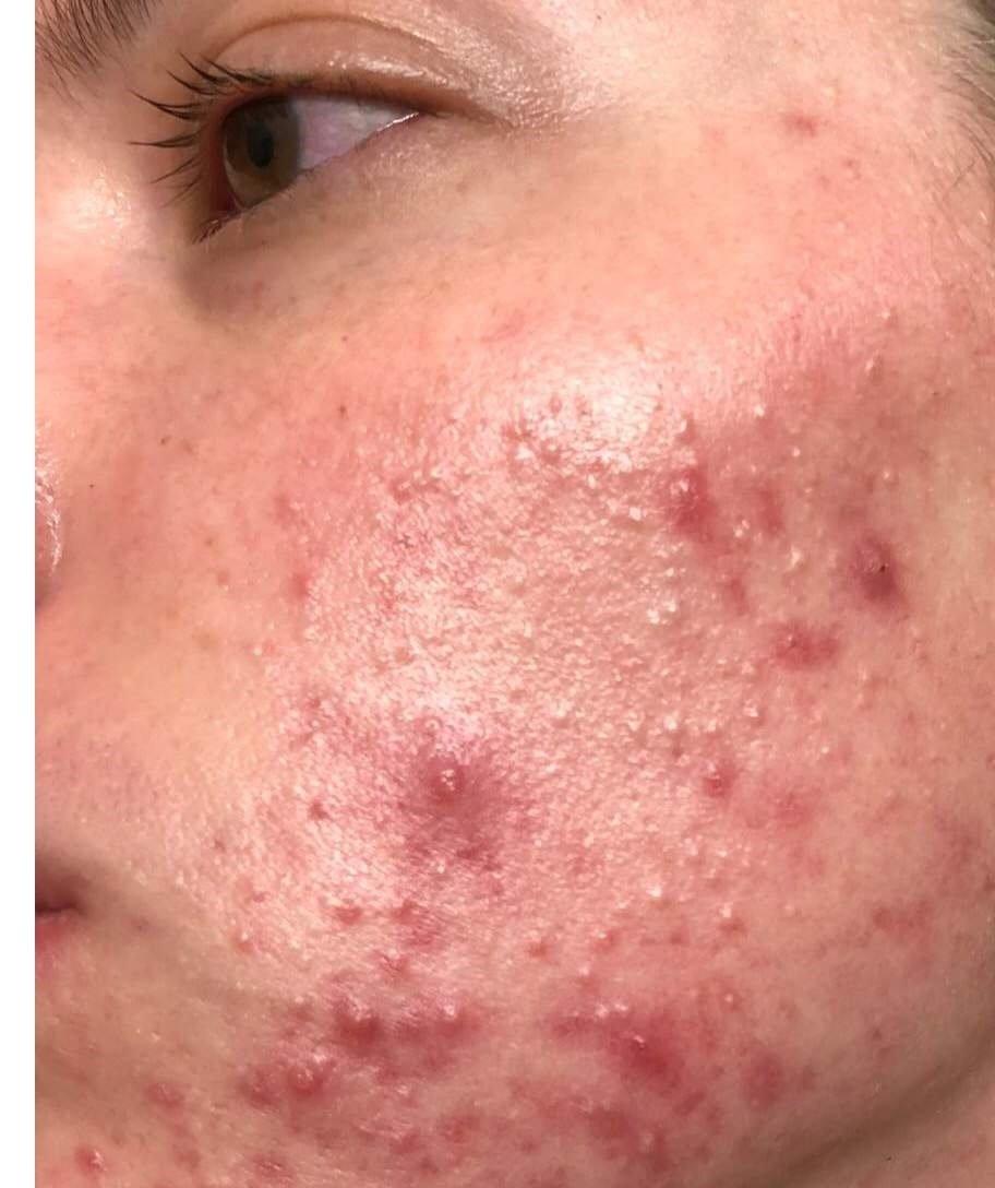 tratament laser pentru acnee - vbeam - skin laser clinic