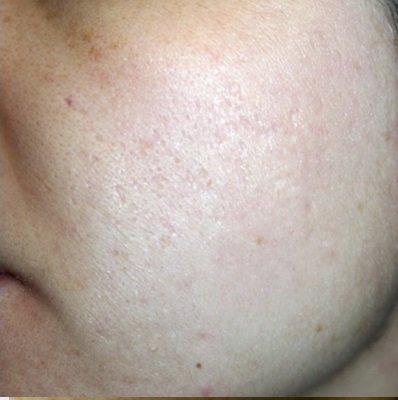 tratament laser cicatrici brasov - skin laser clinic