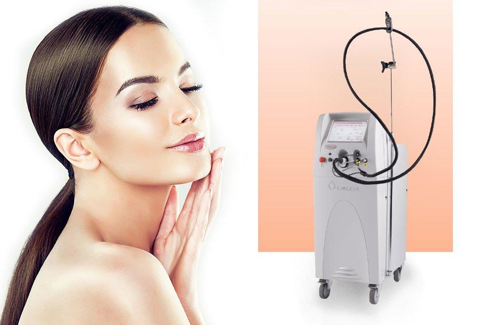 vbeam-perfecta-clinica-laser-brasov