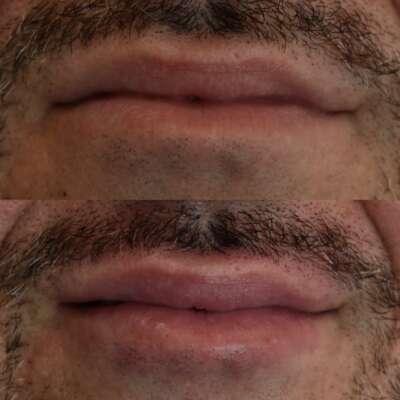 marire-buze-brasov-acid-hialuronic-skin-laser-clinic