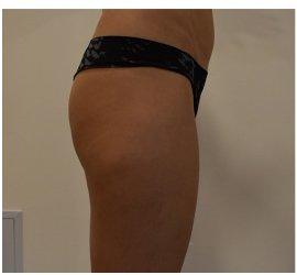 rezultate-slabire-brasov-remodelare-velashape3-skin-laser-clinic