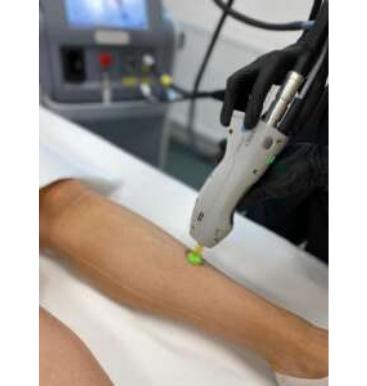 Epilare definitiva cu laser gentle max pro
