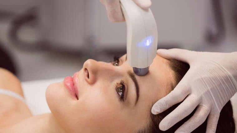 Rejuvenare faciala laser